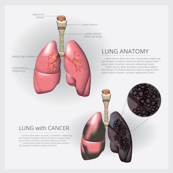 Pulmão com detalhe e ilustração de câncer de pulmão