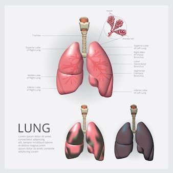 Pulmão com detalhe e ilustração vetorial de câncer de pulmão