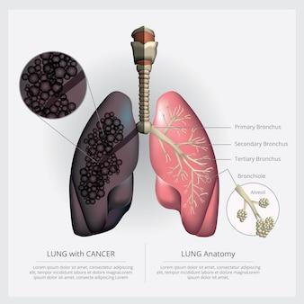 Pulmão com detalhes e ilustração de câncer de pulmão