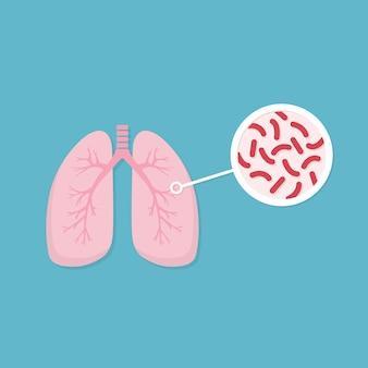 Pulmões de pessoa infectada