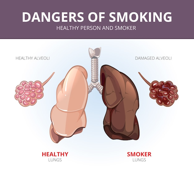 Pulmões e alvéolos de uma pessoa saudável e fumante. ilustração de órgãos, anatomia respiratória, ciência e doenças. diagrama médico vetorial