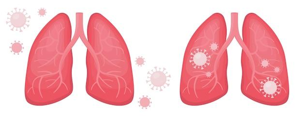 Pulmões humanos de pessoa infectada