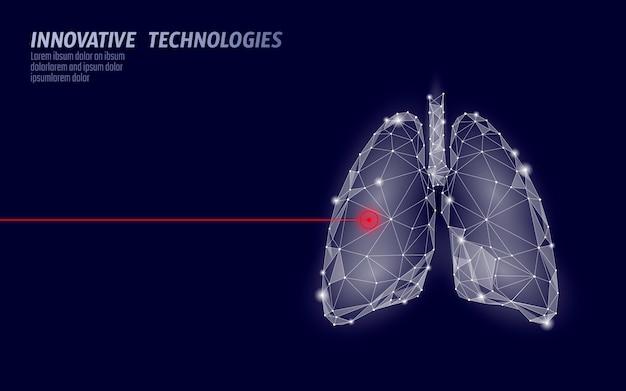 Pulmões humanos operação de cirurgia a laser baixa poli. medicina doença tratamento medicamentoso área dolorosa. triângulos vermelhos poligonais 3d render forma. ilustração de modelo de câncer de tuberculose de farmácia