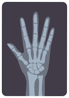 Radiografia, imagem de radiação-x ou imagem de raio-x da mão ou palma com pulso e dedos
