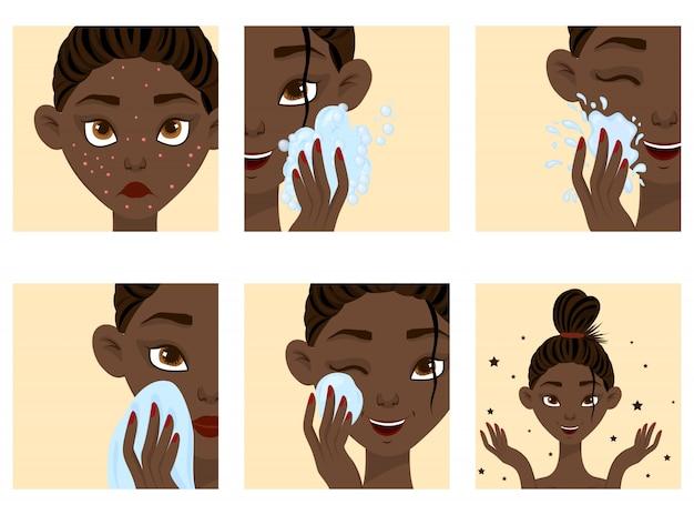 Rosto feminino de pele escura com etapas de cura da acne. estilo dos desenhos animados.