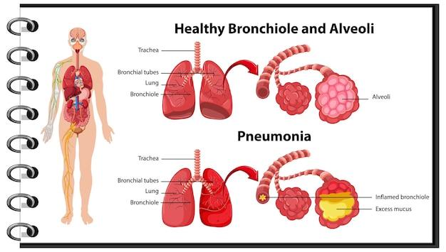 Saudável e doentio dos pulmões humanos