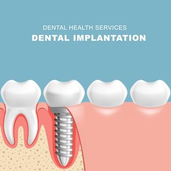 Seção da gengiva com implante dentário - fileira de dentes