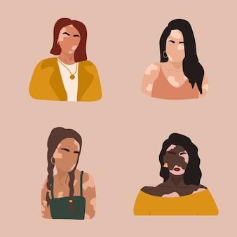 Silhuetas de mulheres abstratas com vitiligo de diferentes nacionalidades.
