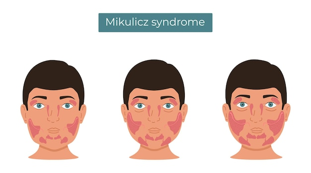 Síndrome de mikulicz