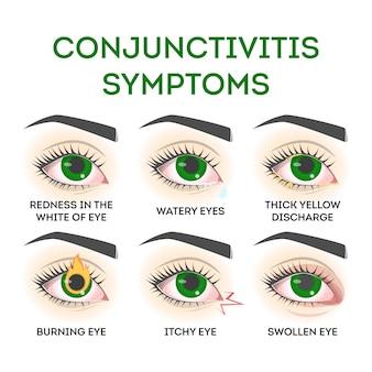 Sintomas de conjuntivite. doença do olho rosa, infecção e alergia. problema de visão.