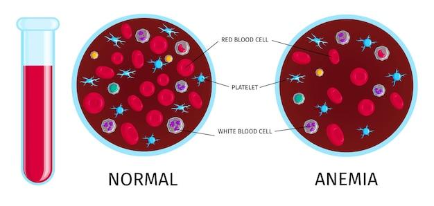 Teste de sangue com infográfico de anemia