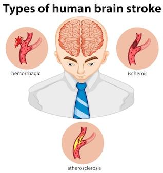 Tipos de acidente vascular cerebral humano