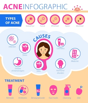 Tipos de acne causas do tratamento da doença infográficos da acne