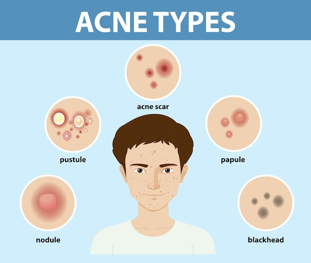 Tipos de acne na pele ou espinhas
