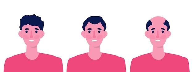 Tipos de calvície em estágios de cabelo na cabeça masculina