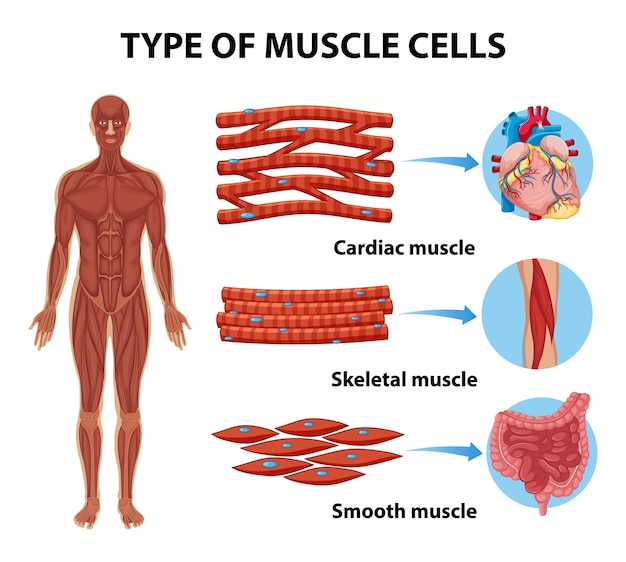 Tipos de células musculares para educação em saúde infográfico