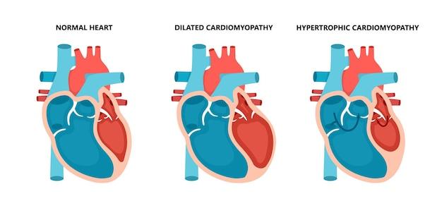 Tipos de doenças cardíacas normais, cardiomiopatia hipertrófica e dilatada doença do músculo cardíaco humano