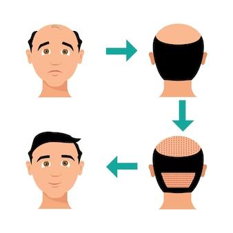 Transplante de cabelo de vetor