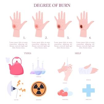 Tratamento de lesões por queimadura de pele e etapas infográfico.
