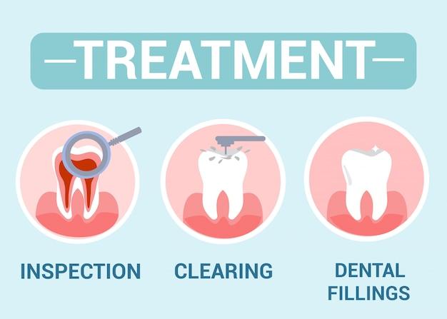 Tratamento dentário, conceito de serviço de dentista