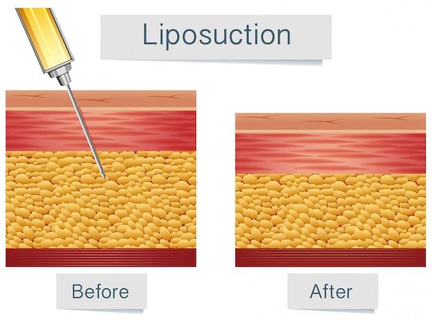 Tratamento médico e comparação de lipoaspiração