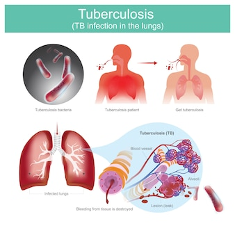 Tuberculose infecção por tb nos pulmões. pacientes com infecções respiratórias. causado pela bactéria da tuberculose. a bactéria da tuberculose pica o tecido, resultando no vazamento do vaso sanguíneo.