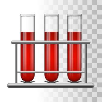Tubos de análise médica com sangue no rack.