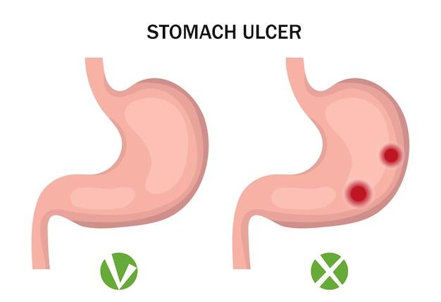 Úlcera de estômago e infográficos de estômago saudável. conceito de medicina.
