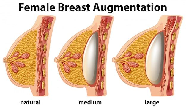 Um conjunto de aumento de mama feminina