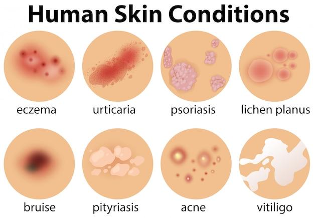Um conjunto de condições de pele humana
