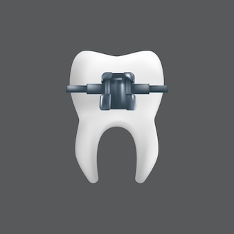Um dente com uma cinta de metal. conceito de tratamento ortodôntico. ilustração realista de um modelo de cerâmica odontológica isolado em um fundo cinza