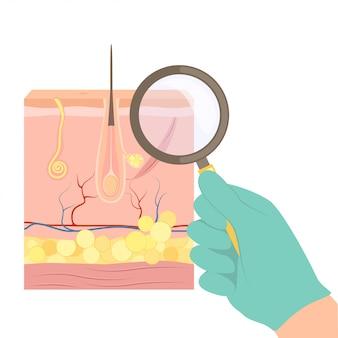 Um dermatologista com uma lupa examina a pele do paciente.
