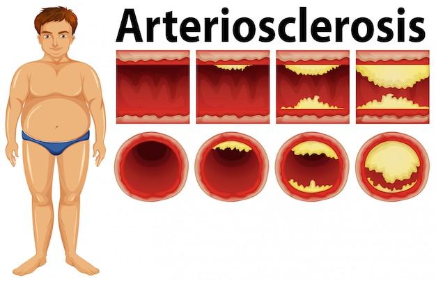 Um homem gordo com aterosclerose