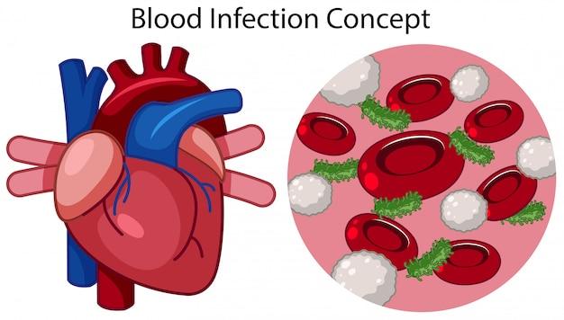Um vetor de conceito de infecção de sangue