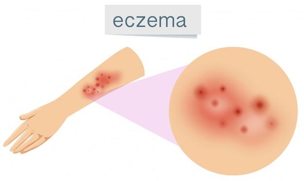 Um vetor de eczema na pele