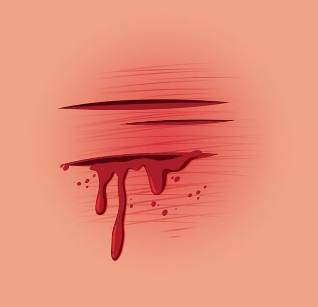 Uma ferida fresca de pele