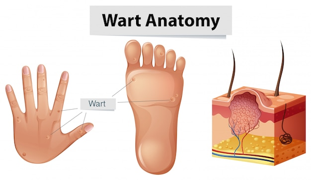Verrugas de anatomia humana na mão e pé