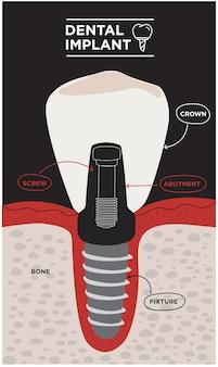 Vetor de anatomia de dente infográficos odontológicos banner médico ou pôster com estrutura dentária