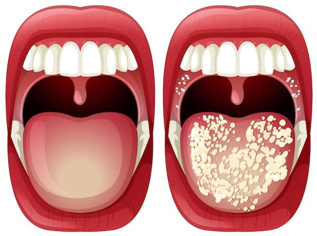 Vetor de saudável e boca de vírus