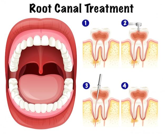 Vetor dentário do tratamento do canal radicular