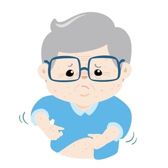 Vovô com problema de saúde alergia prurido