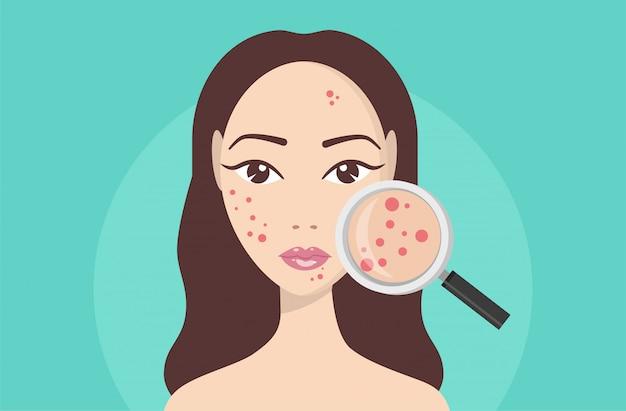 Acne, problemi della pelle, fasi dell'acne. lente d'ingrandimento della holding della donna per la ricerca dell'acne cistica sul suo facial.