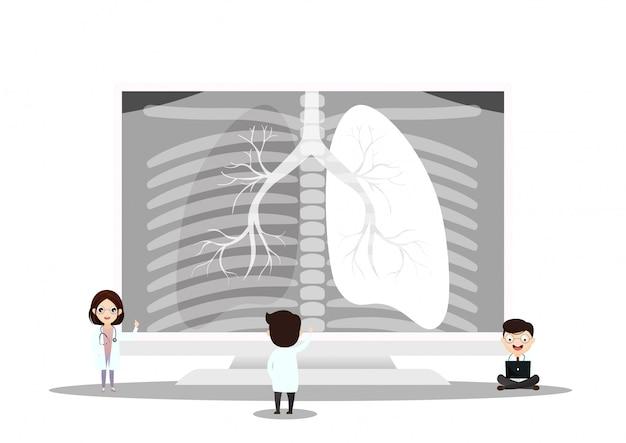 Anatomia dell'organo polmonare