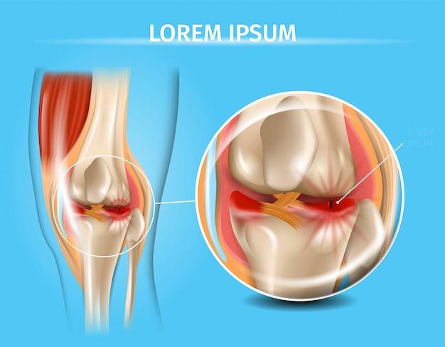 Articolazione del ginocchio infortunato con grafico di vettore del menisco lacerato