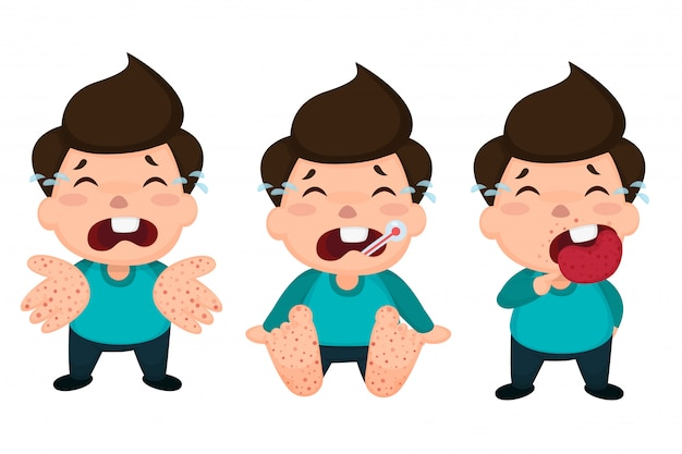 Bambini infetti da afta epizootica (hfmd).
