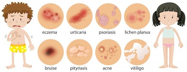 Bambini piccoli con diverse condizioni della pelle