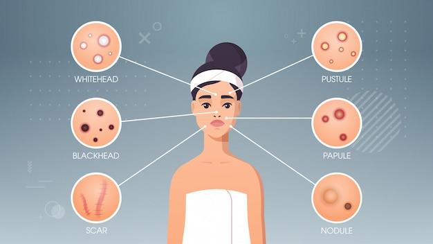 Brufoli della pelle del viso acne diversi tipi su donna faccia pori comedoni cosmetologia skincare problemi concetto orizzontale ritratto piatto