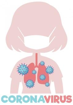 Cartellonistica coronavirus con polmoni pieni di virus