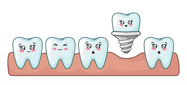 Cartone animato dente kawaii di impianto dentale simpatico personaggio cure odontoiatriche