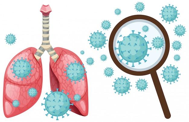 Cellula di coronavirus nei polmoni umani su bianco